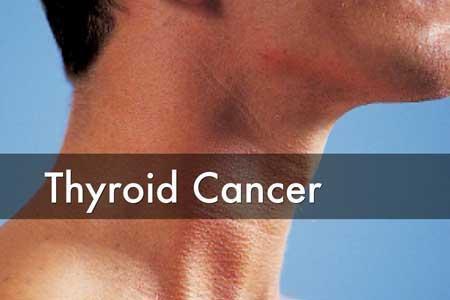 درمان سرطان تیروئید با گرما!